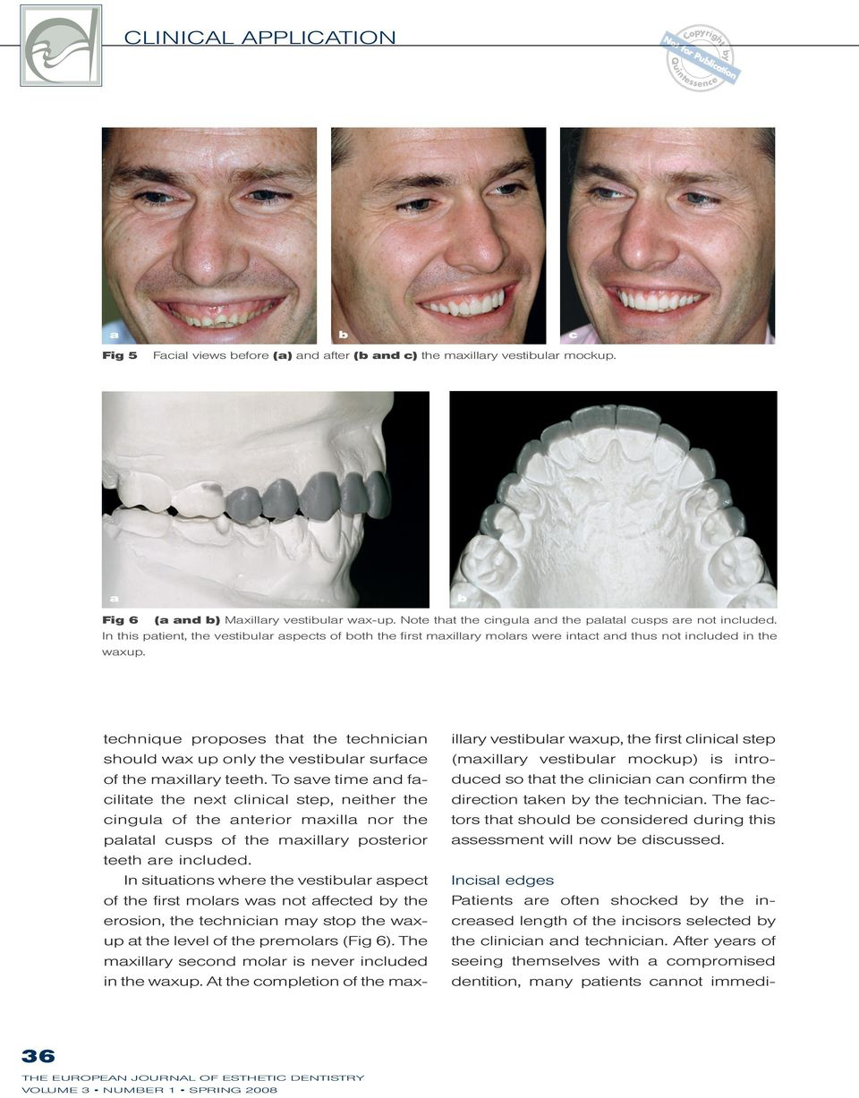 technique proposes tht the technicin should wx up only the vestiulr surfce of the mxillry teeth.