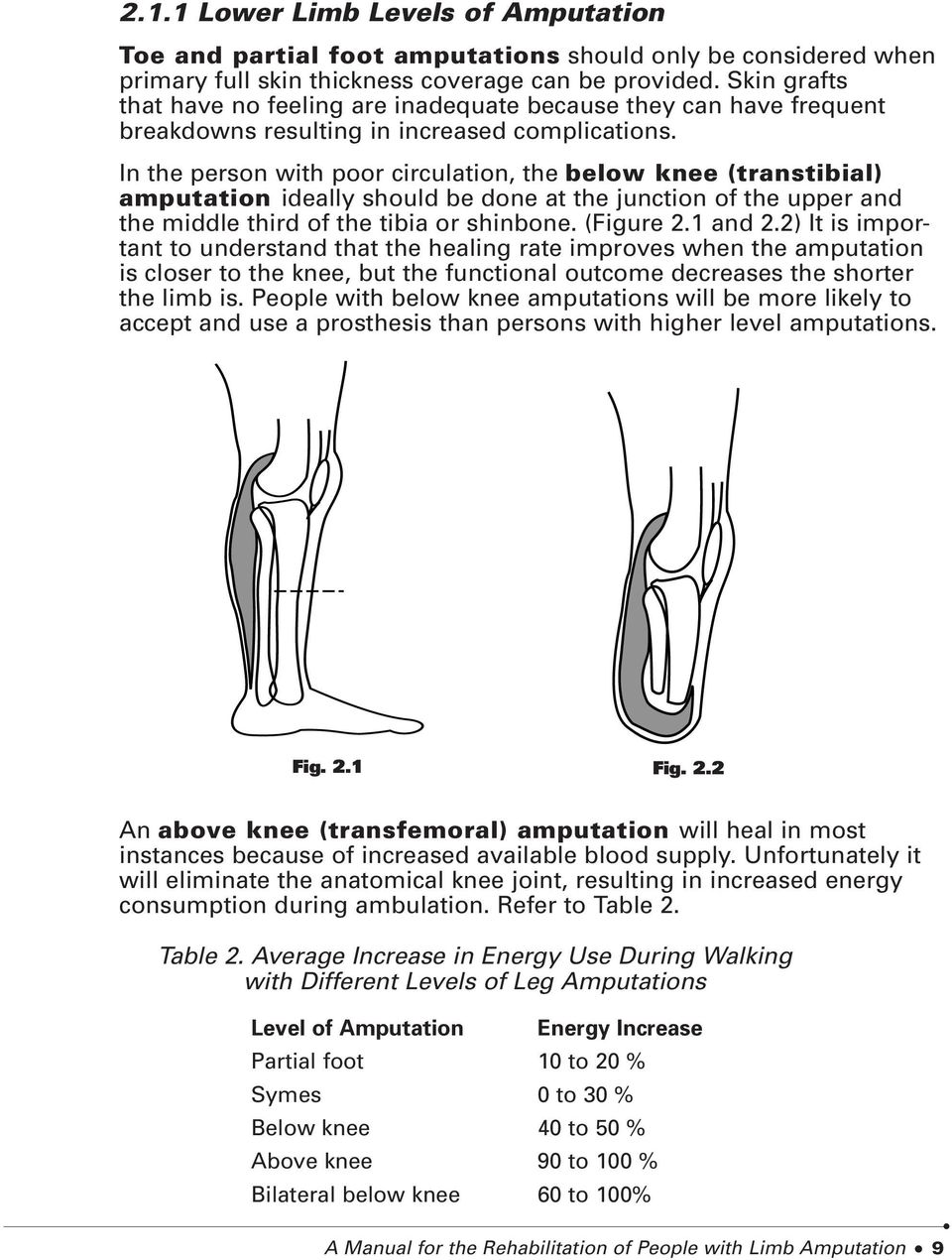 In the person with poor circulation, the below knee (transtibial) amputation ideally should be done at the junction of the upper and the middle third of the tibia or shinbone. (Figure 2.1 and 2.