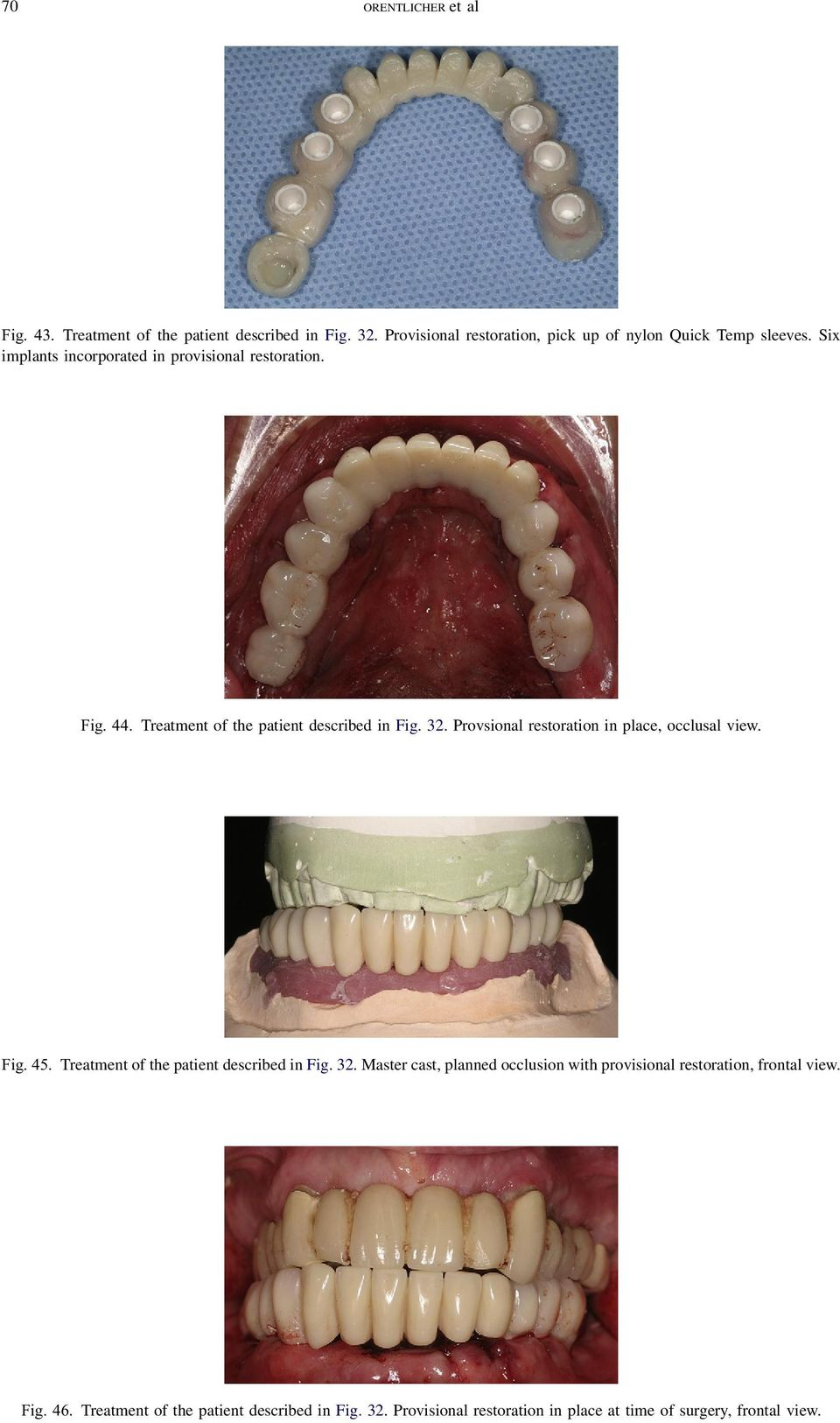 Provsional restoration in place, occlusal view. Fig. 45. Treatment of the patient described in Fig. 32.