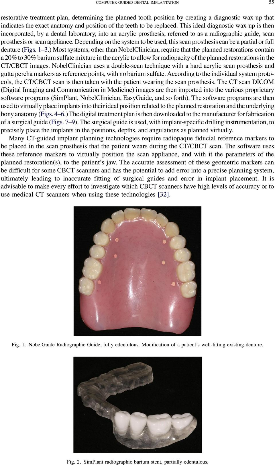 Depending on the system to be used, this scan prosthesis can be a partial or full denture (Figs. 1 3.