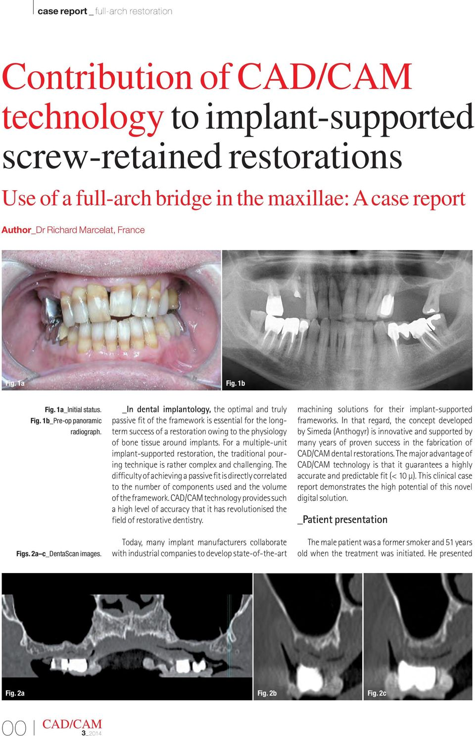 _In dental implantology, the optimal and truly passive fit of the framework is essential for the longterm success of a restoration owing to the physiology of bone tissue around implants.