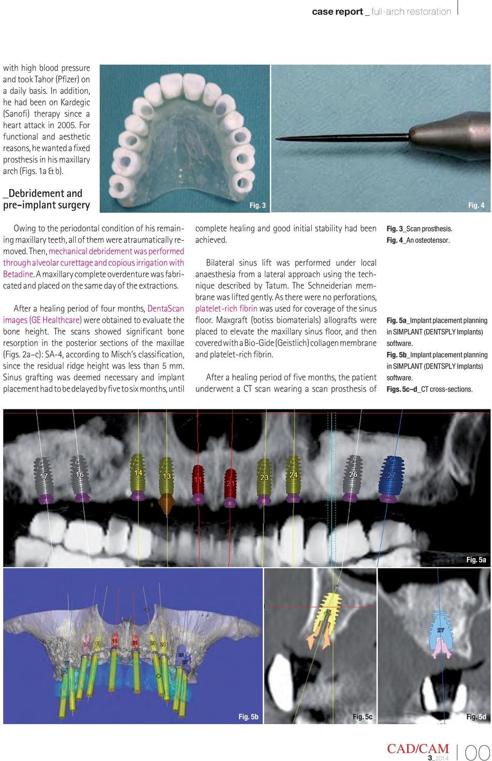 _Debridement and pre-implant surgery Owing to the periodontal condition of his remaining maxillary teeth, all of them were atraumatically removed.