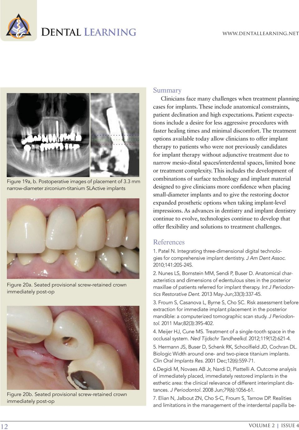 Seated provisional screw-retained crown immediately post-op Summary Clinicians face many challenges when treatment planning cases for implants.