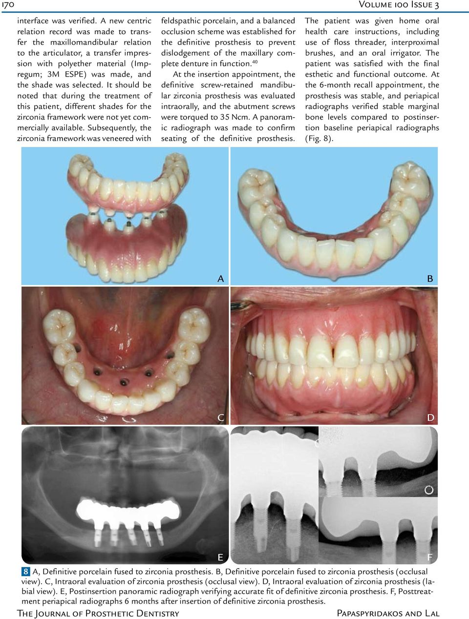 selected. It should be noted that during the treatment of this patient, different shades for the zirconia framework were not yet commercially available.