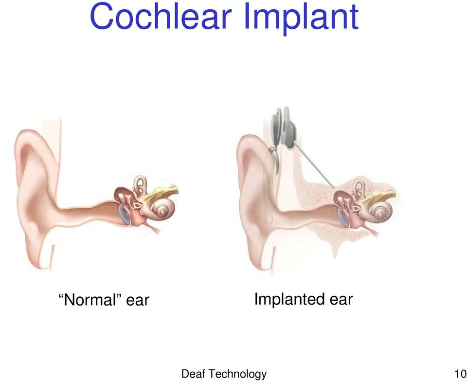 ear Implanted