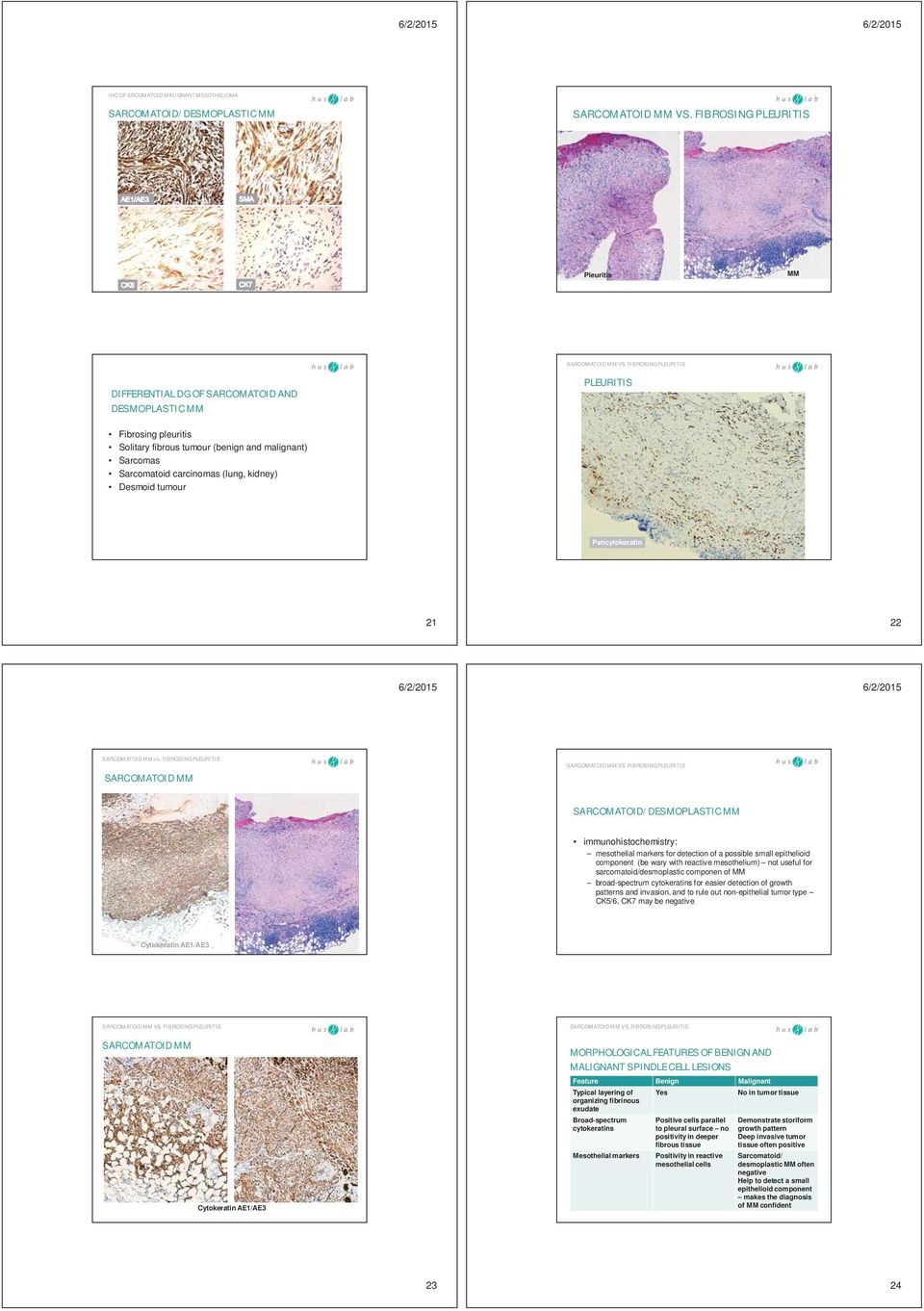FIBROSING PLEURITIS SARCOMATOID MM SARCOMATOID/DESMOPLASTIC MM immunohistochemistry: mesothelial markers for detection of a possible small epithelioid component (be wary with reactive mesothelium)