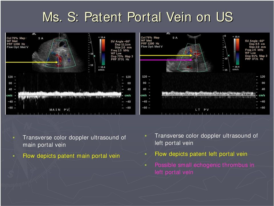 color doppler ultrasound of left portal vein Flow depicts patent