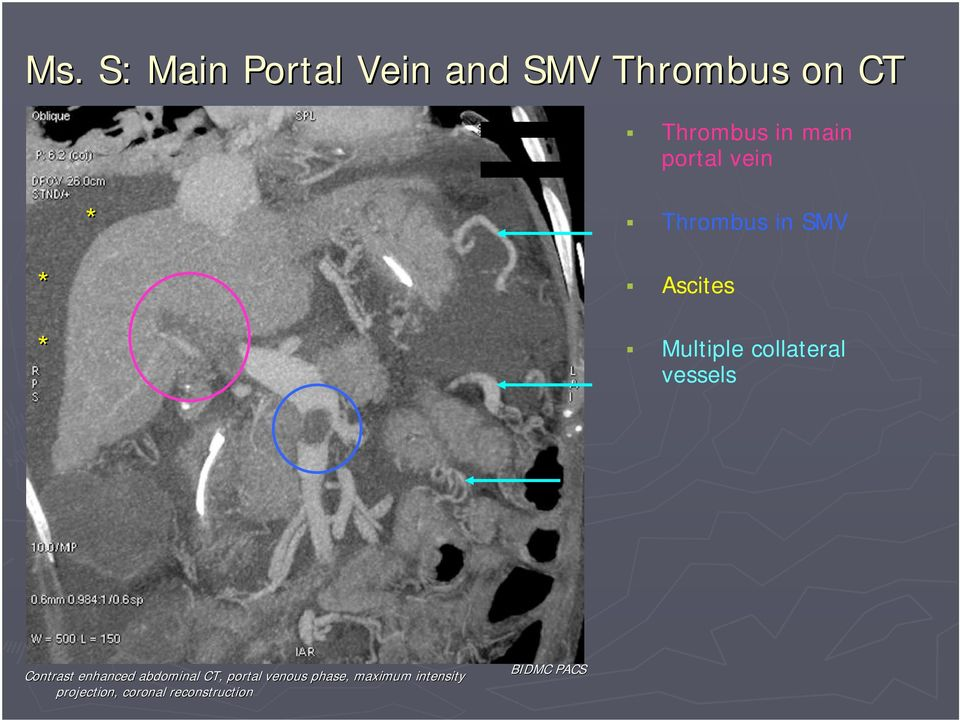 collateral vessels Contrast enhanced abdominal CT, portal