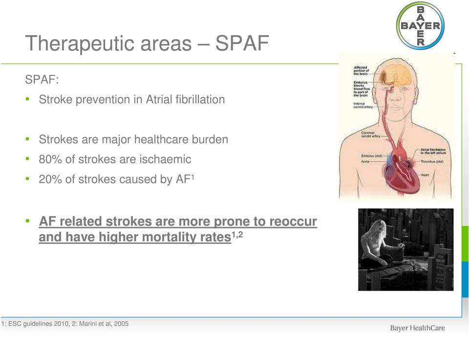 strokes caused by AF 1 AF related strokes are more prone to reoccur and