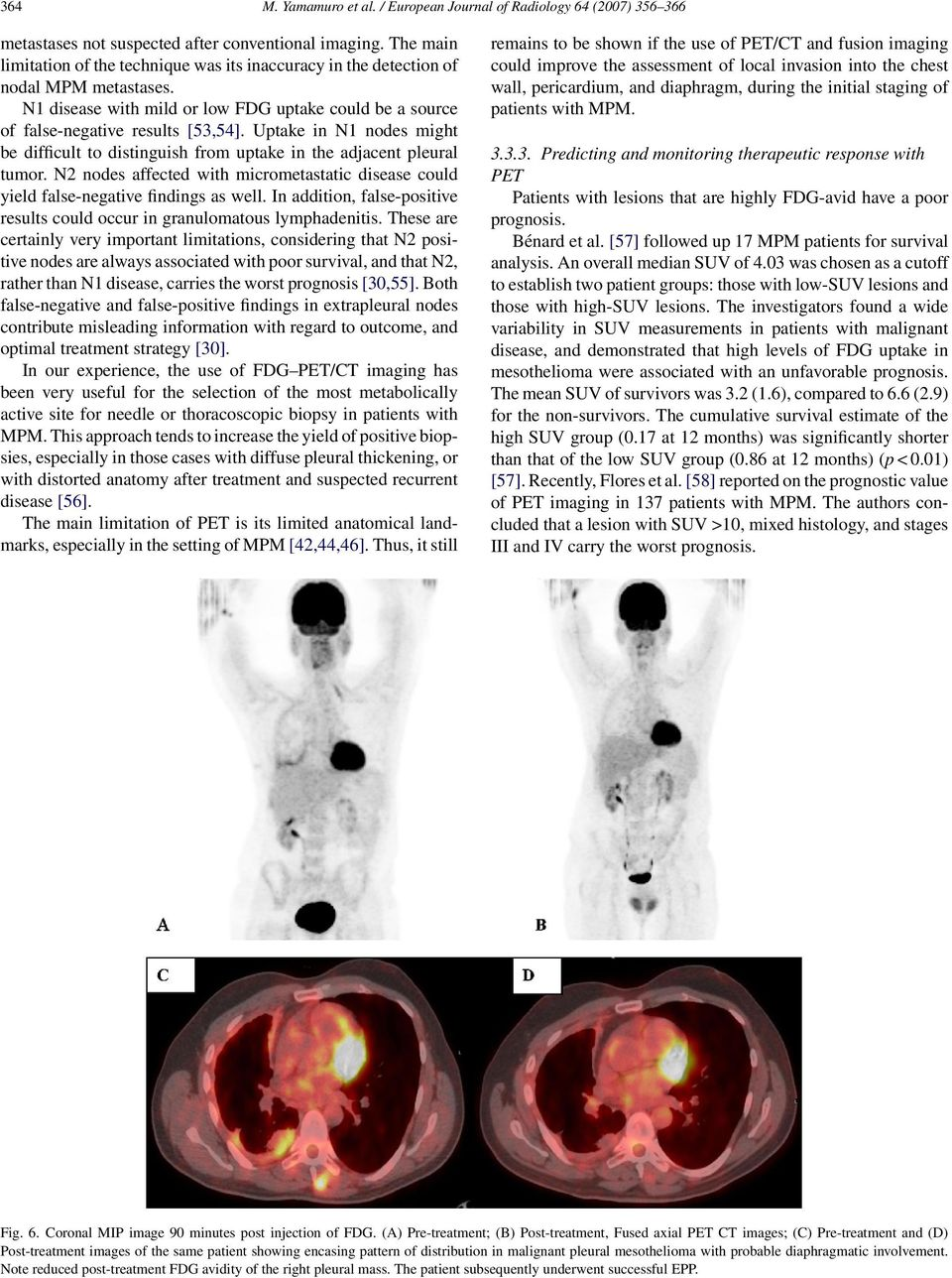 Uptake in N1 nodes might be difficult to distinguish from uptake in the adjacent pleural tumor. N2 nodes affected with micrometastatic disease could yield false-negative findings as well.