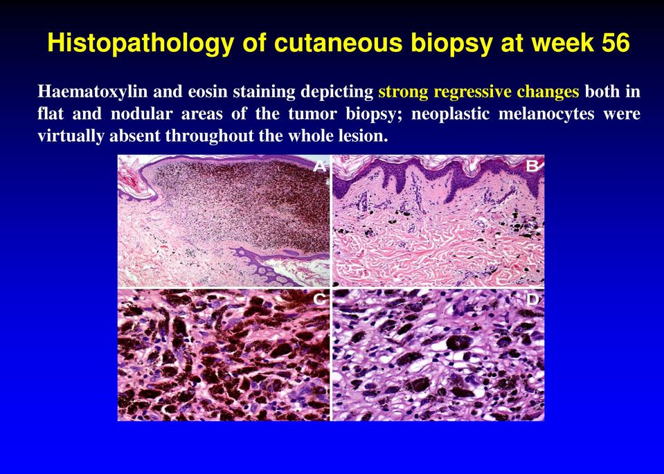 in flat and nodular areas of the tumor biopsy; neoplastic