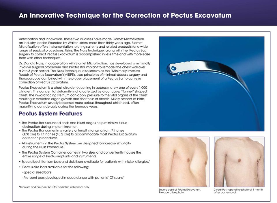 Using the Nuss Technique, along with the Pectus Bar, surgery to correct Pectus Excavatum is accomplished in less time and with more ease than with other techniques. Dr.