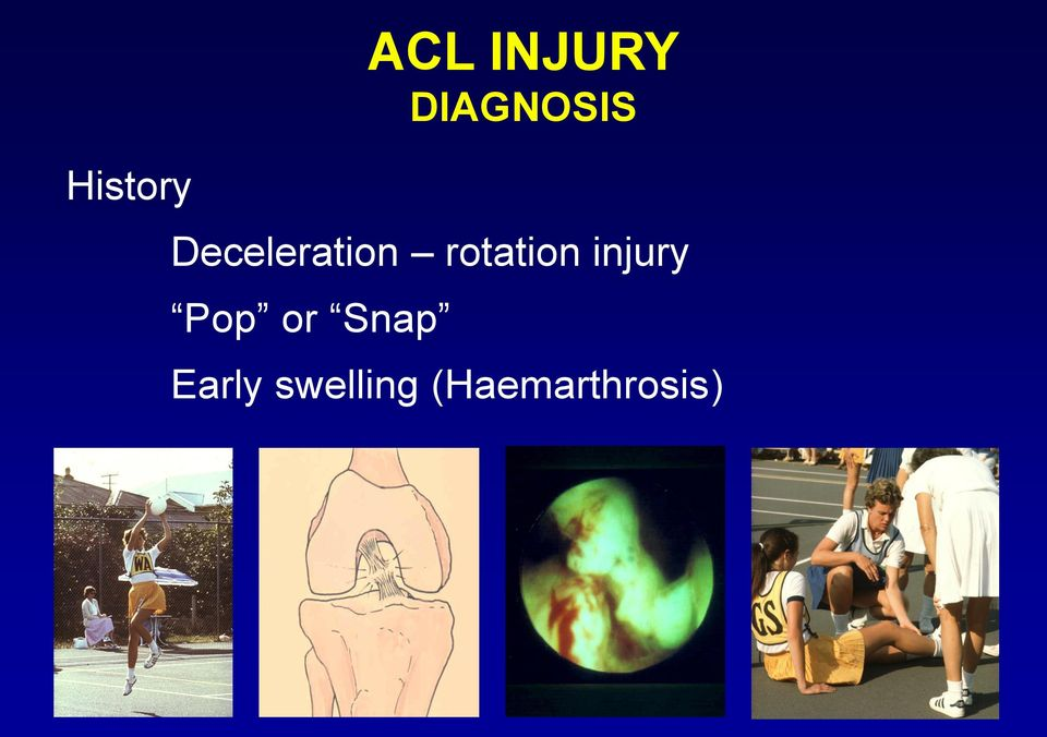 rotation injury Pop or