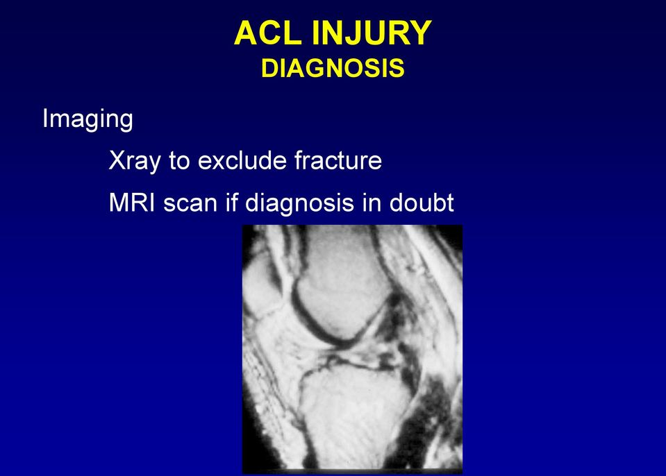 exclude fracture MRI