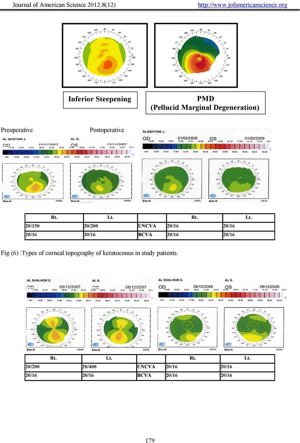 20/16 Fig (6) :Types of corneal topography of keratoconus in study