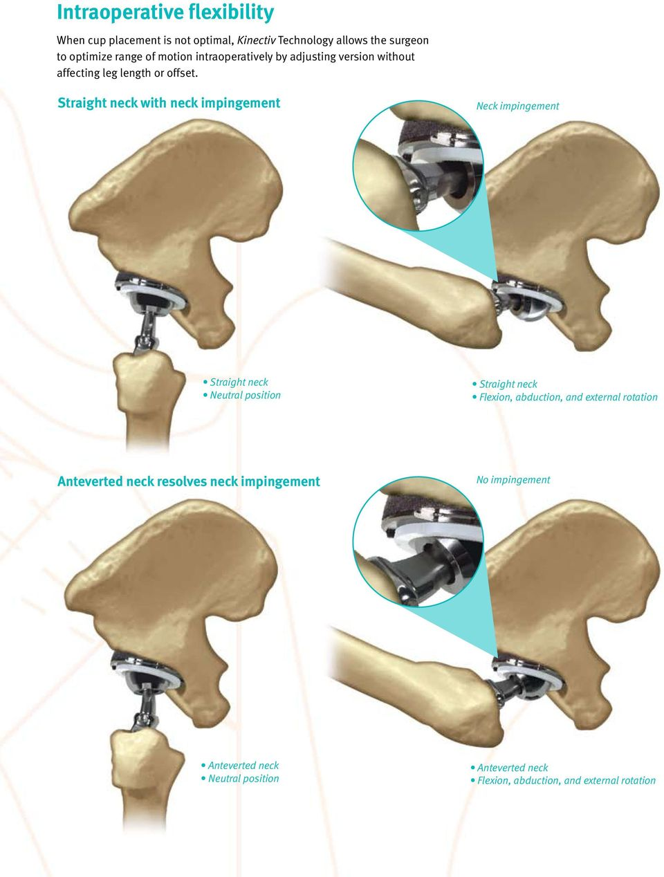 Straight neck with neck impingement Neck impingement Straight neck Neutral position Straight neck Flexion, abduction, and