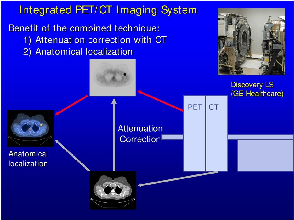 CT 2) Anatomical localization PET CT Discovery LS