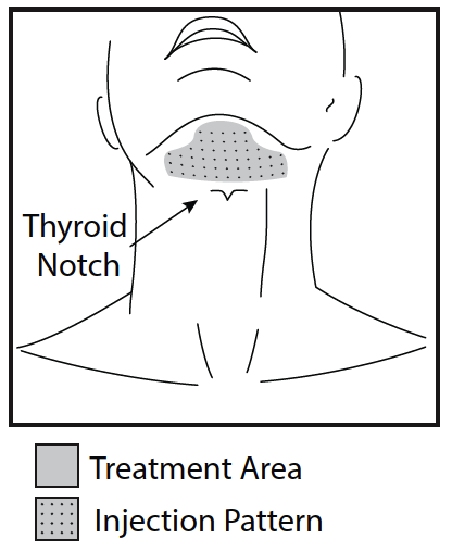 Treatment Area and Injection Pattern Do not inject KYBELLA outside the defined parameters [see Warnings and Precautions (5.1, 5.4)].