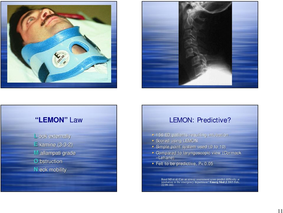 156 ED patients requiring intubation Scored using LEMON Simple point system used (0 to 10) Compared to
