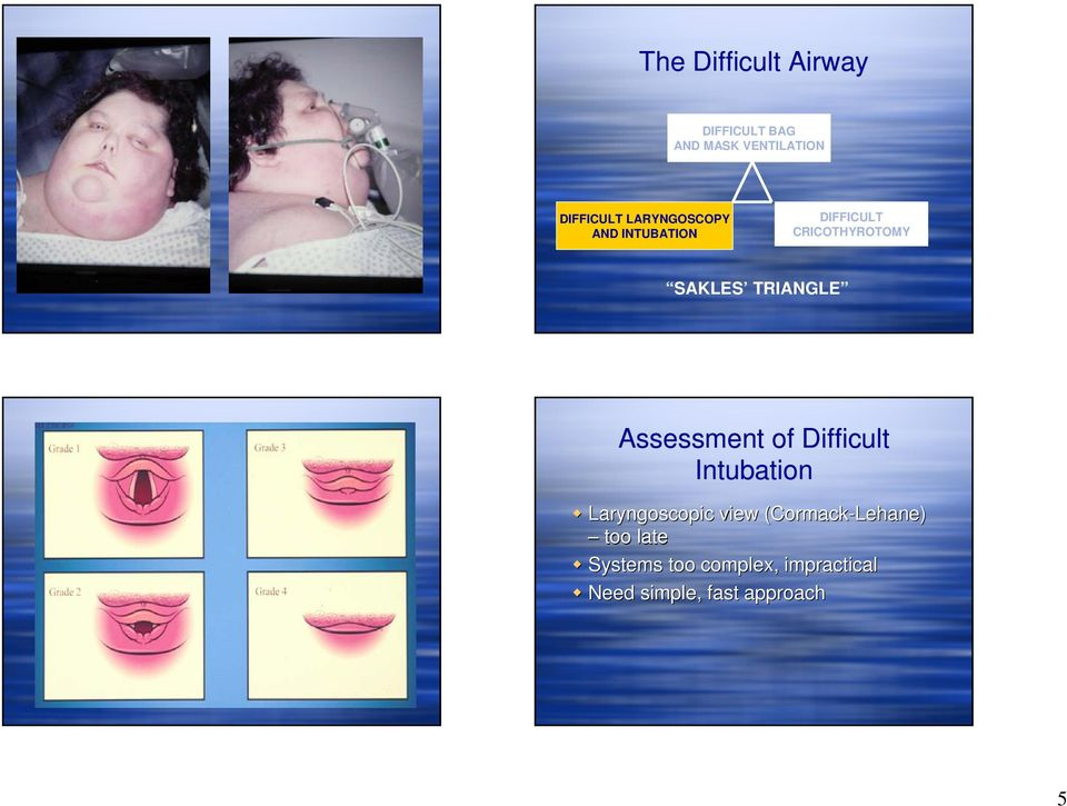 Assessment of Difficult Intubation Laryngoscopic view