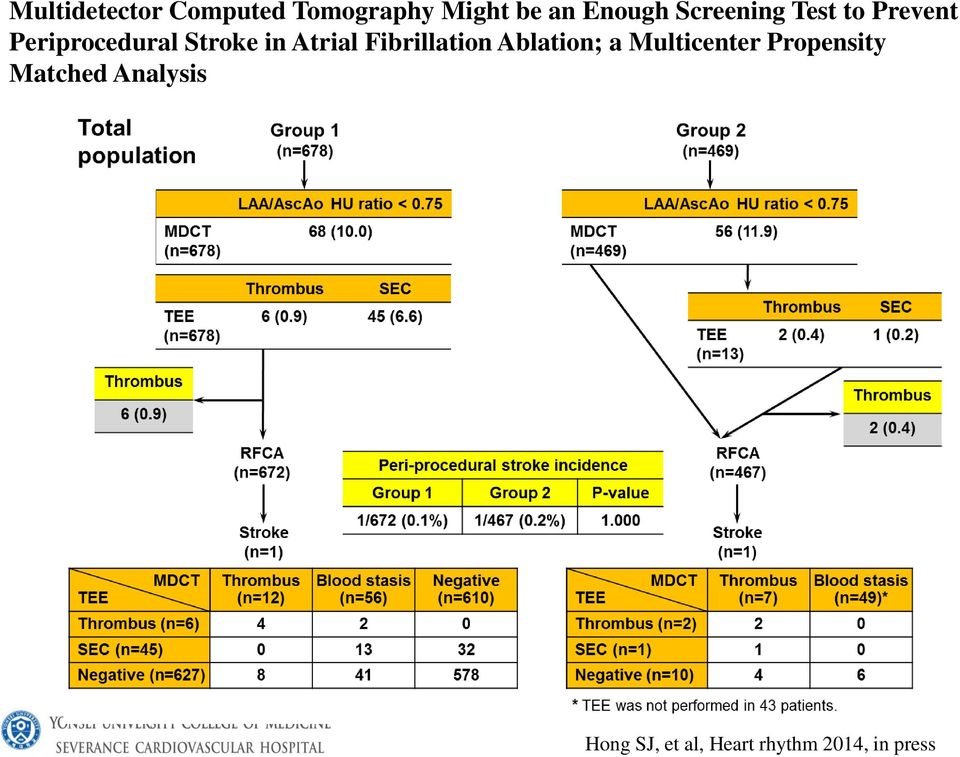 Atrial Fibrillation Ablation; a Multicenter Propensity