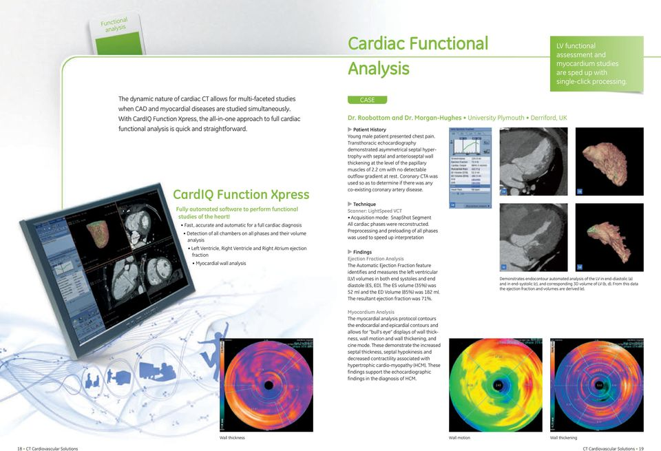 With CardIQ Function Xpress, the all-in-one approach to full cardiac functional is quick and straightforward.