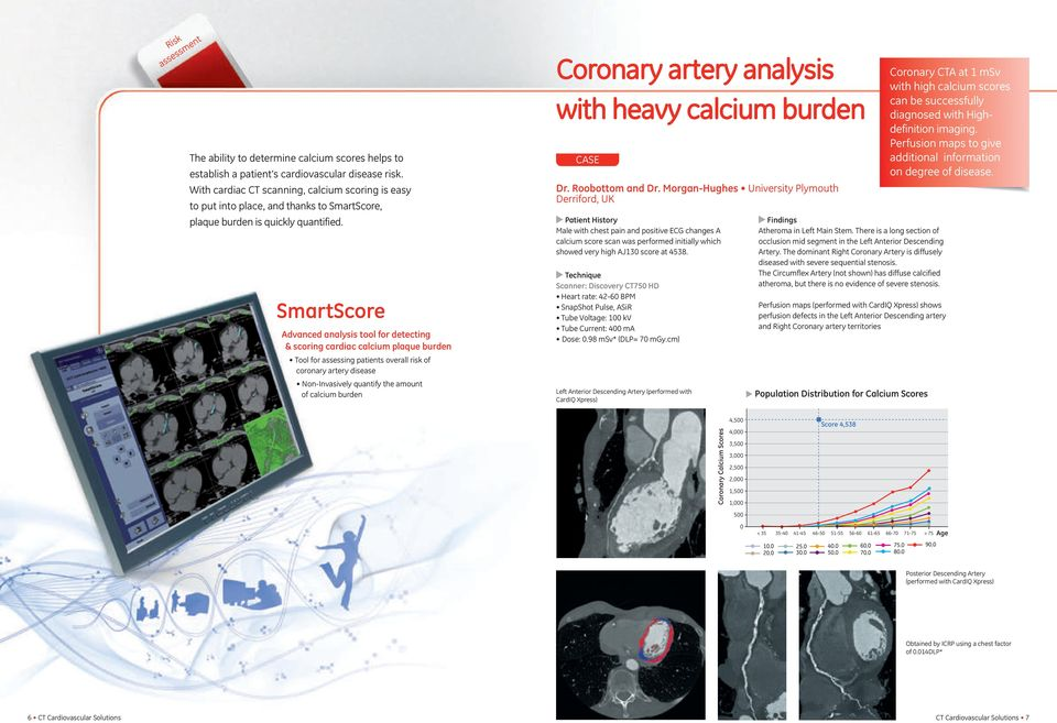 SmartScore Advanced tool for detecting & scoring cardiac calcium plaque burden Tool for assessing patients overall risk of coronary artery disease Non-Invasively quantify the amount of calcium burden