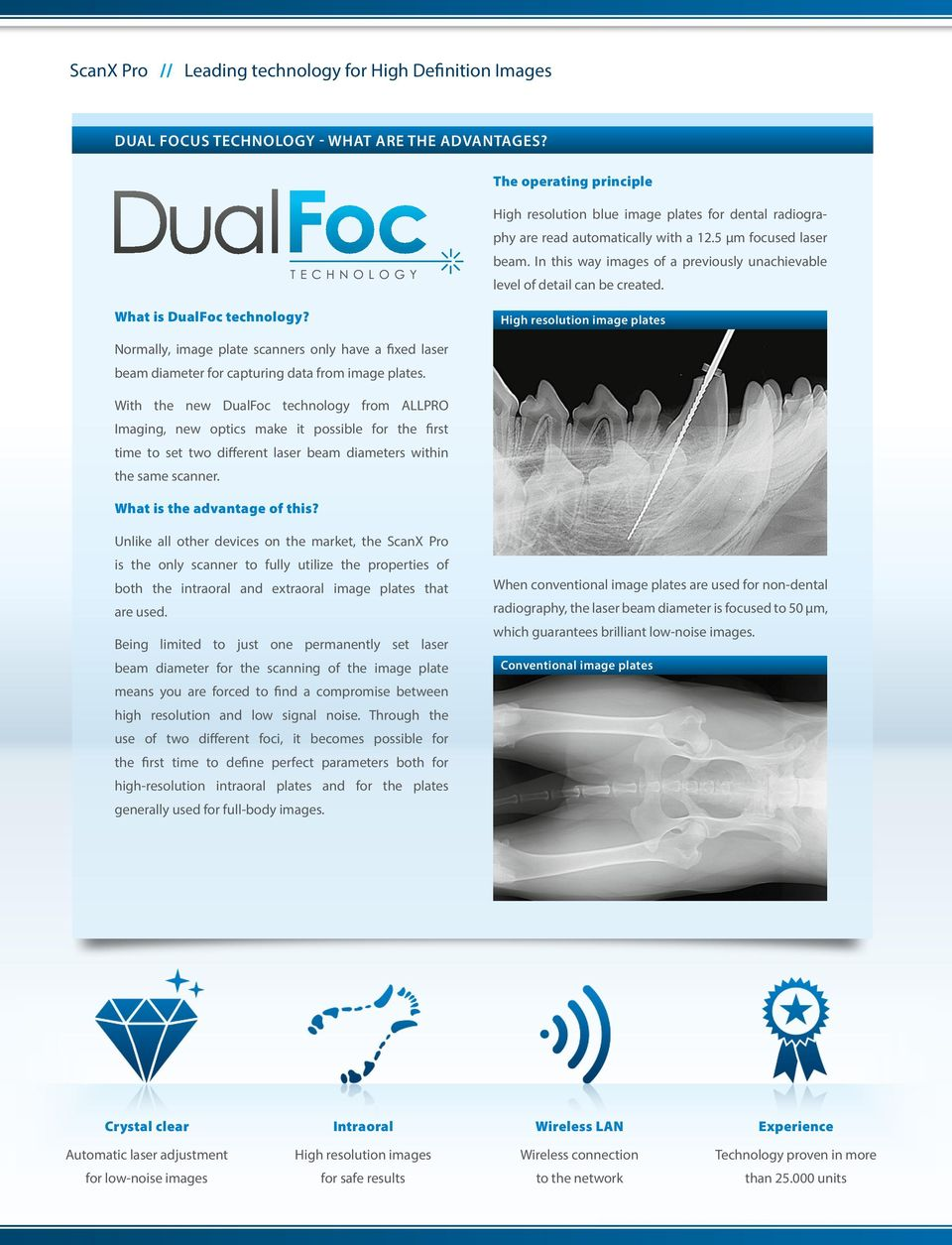 In this way images of a previously unachievable level of detail can be created. What is DualFoc technology?