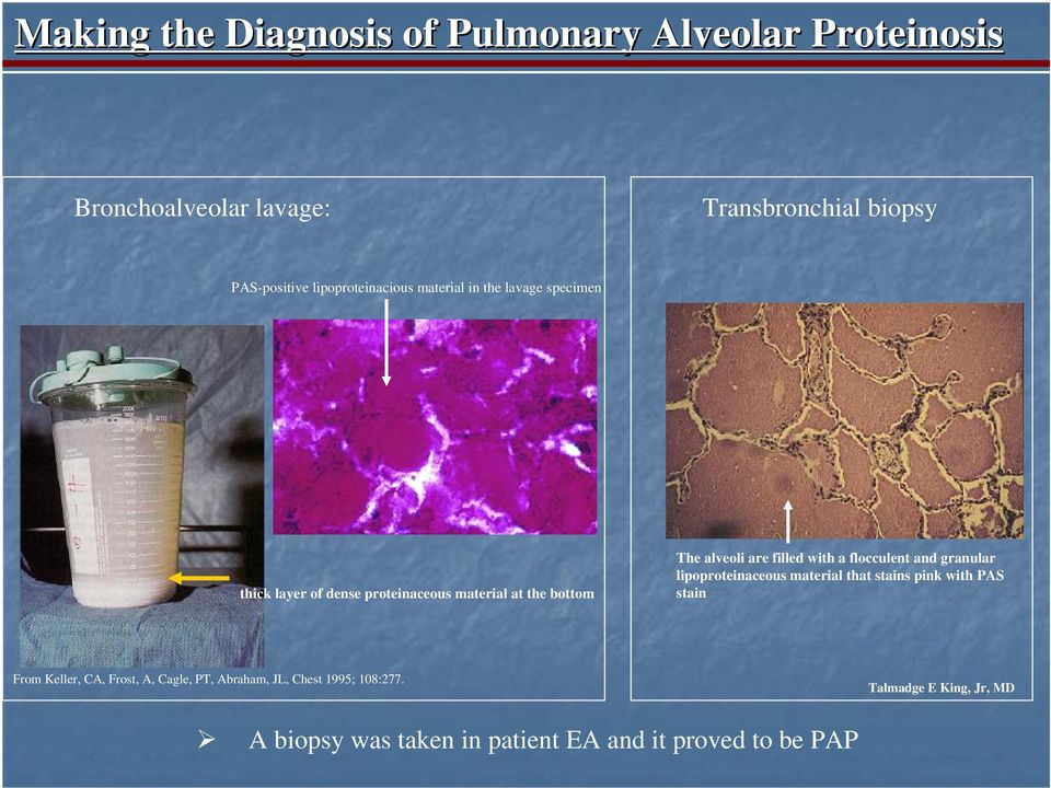 are filled with a flocculent and granular lipoproteinaceous material that stains pink with PAS stain From Keller, CA,