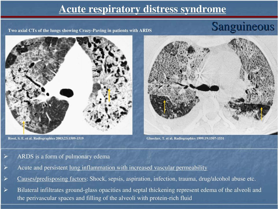 Radiographics 1999;19:1507-1531 ARDS is a form of pulmonary edema Acute and persistent lung inflammation with increased vascular permeability