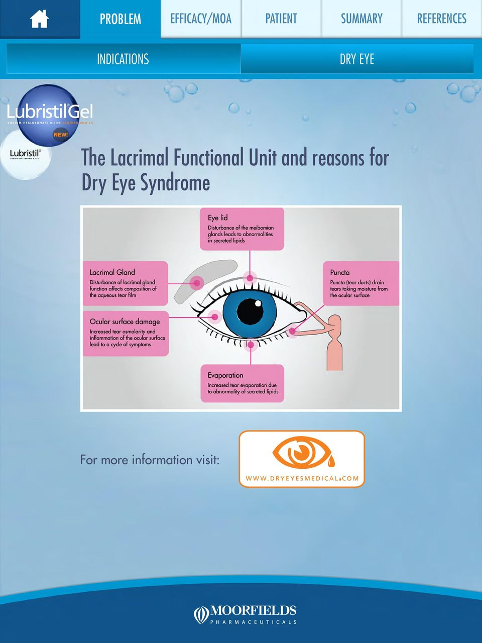 and reasons for Dry Eye