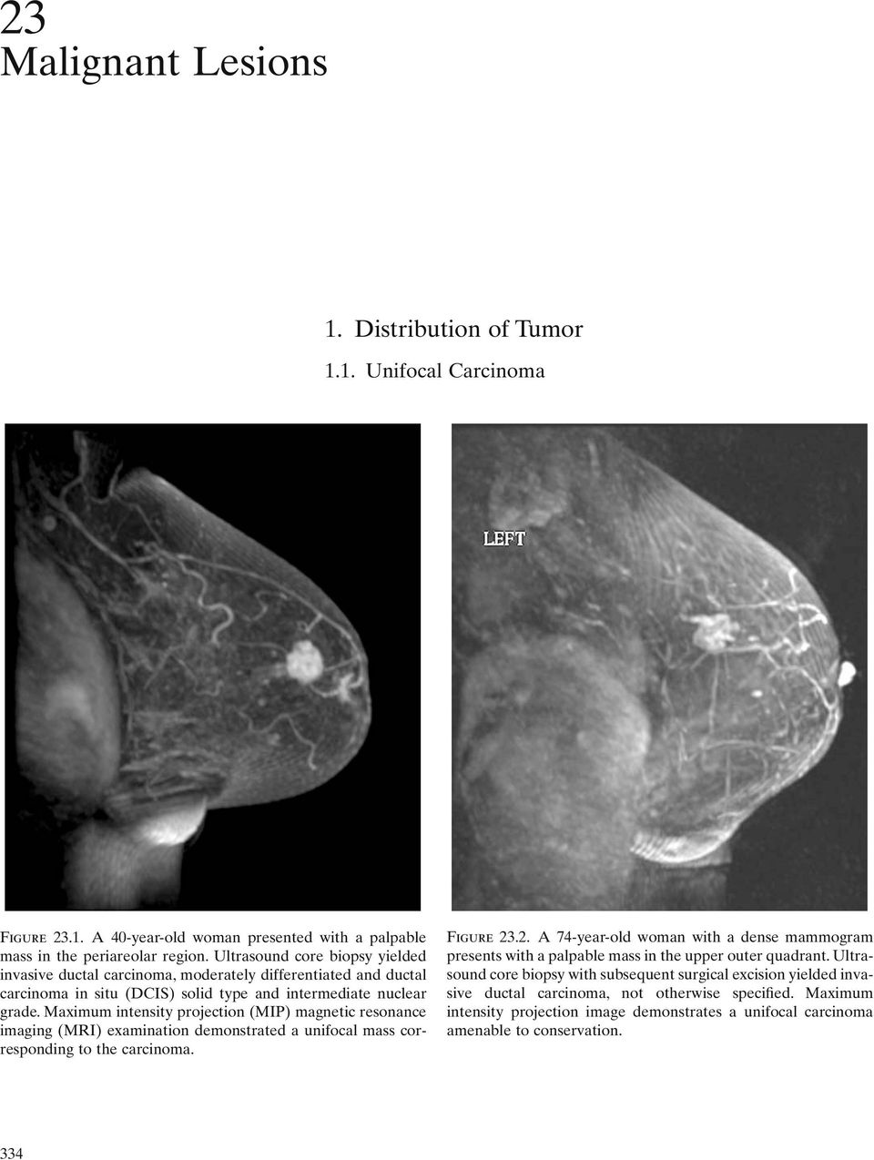 Maximum intensity projection (MIP) magnetic resonance imaging (MRI) examination demonstrated a unifocal mass corresponding to the carcinoma. Figure 23