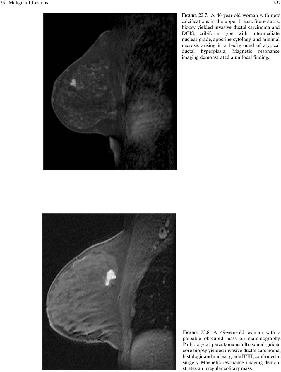 background of atypical ductal hyperplasia. Magnetic resonance imaging demonstrated a unifocal finding. Figure 23.8.