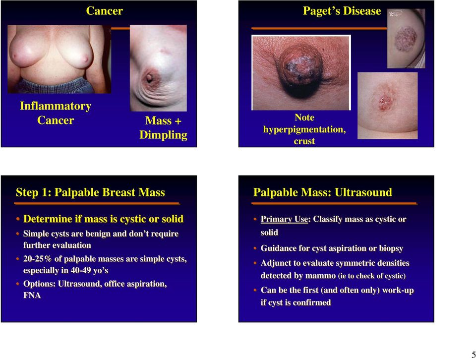 Options: Ultrasound, office aspiration, FNA Palpable Mass: Ultrasound Primary Use: Classify mass as cystic or solid Guidance for cyst aspiration