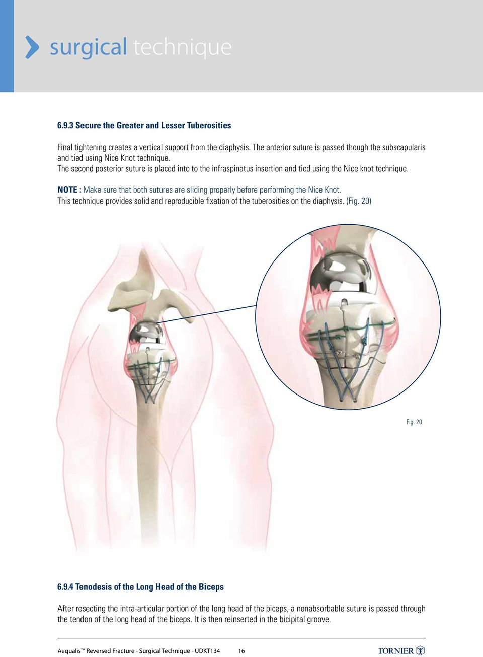 SHOULDER Solutions by Tornier AEQUALIS REVERSED FRACTURE SURGICAL ...