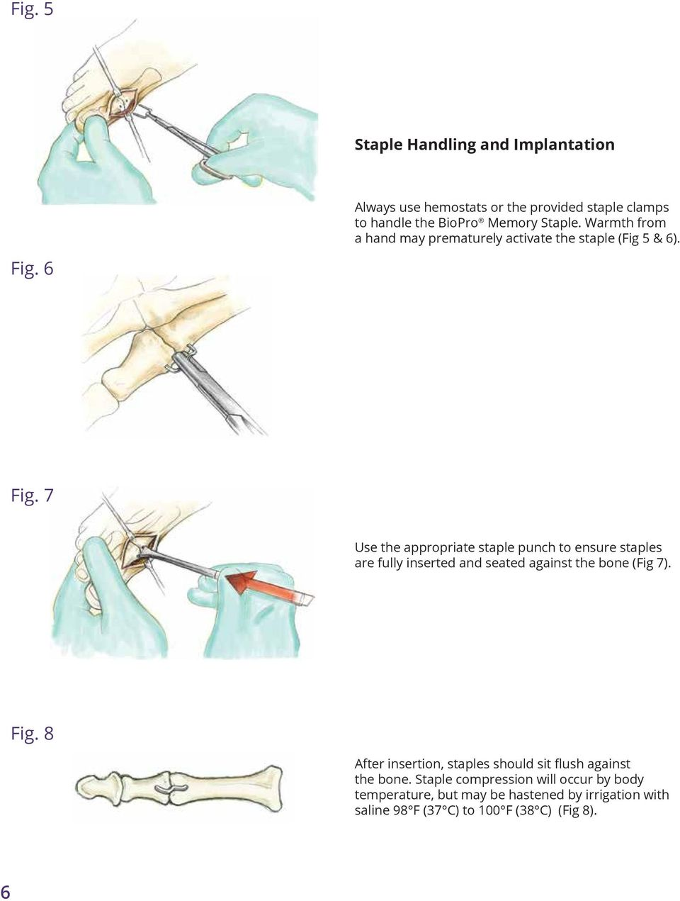 7 Use the appropriate staple punch to ensure staples are fully inserted and seated against the bone (Fig 7). Fig.