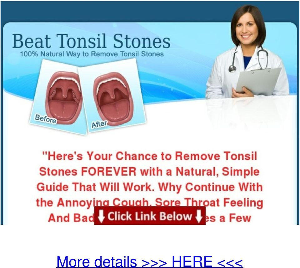 12 Beat Remedies for Tonsil Stone Removal