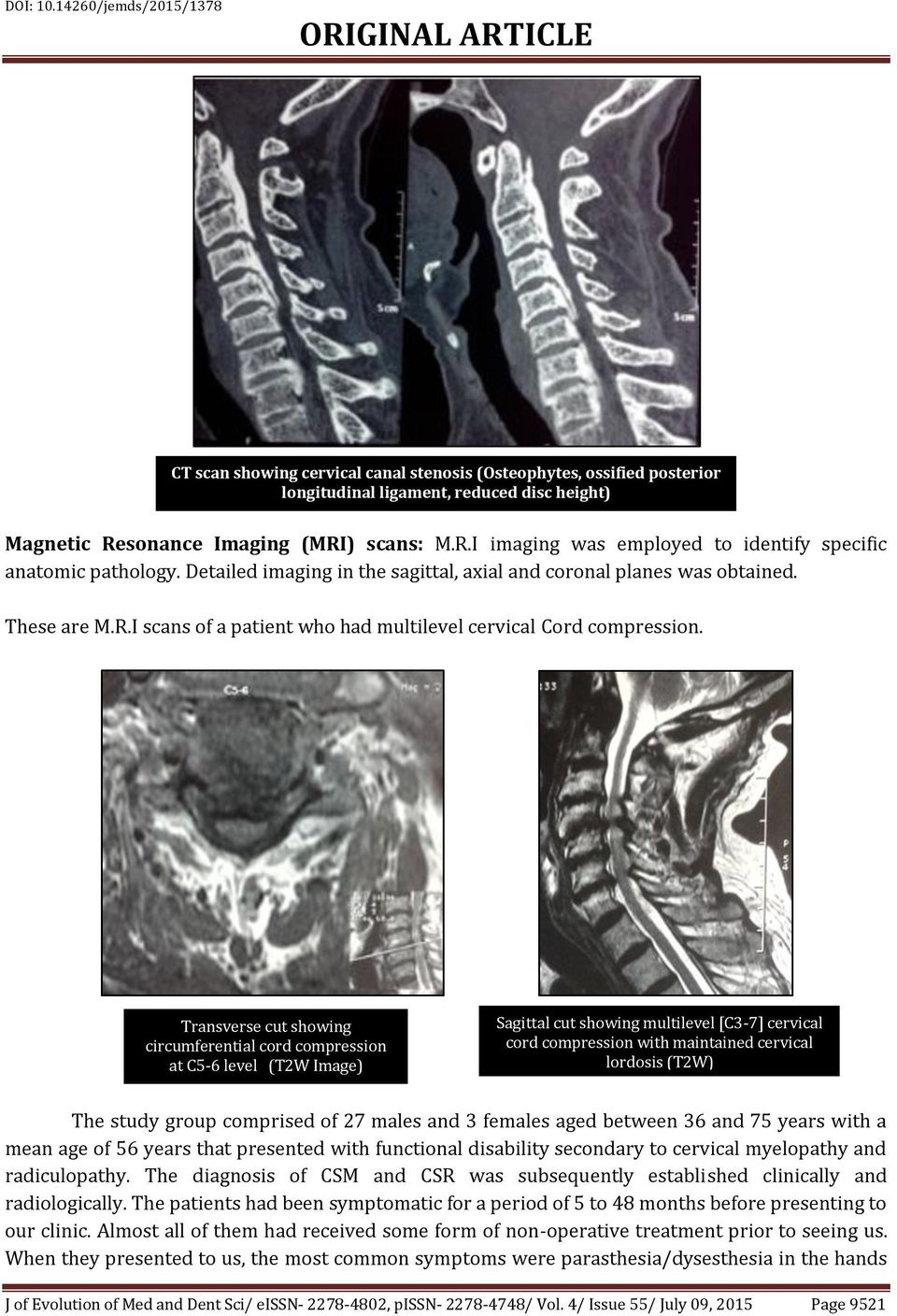 Transverse cut showing circumferential cord compression at C5-6 level (T2W Image) Sagittal cut showing multilevel [C3-7] cervical cord compression with maintained cervical lordosis (T2W) The study