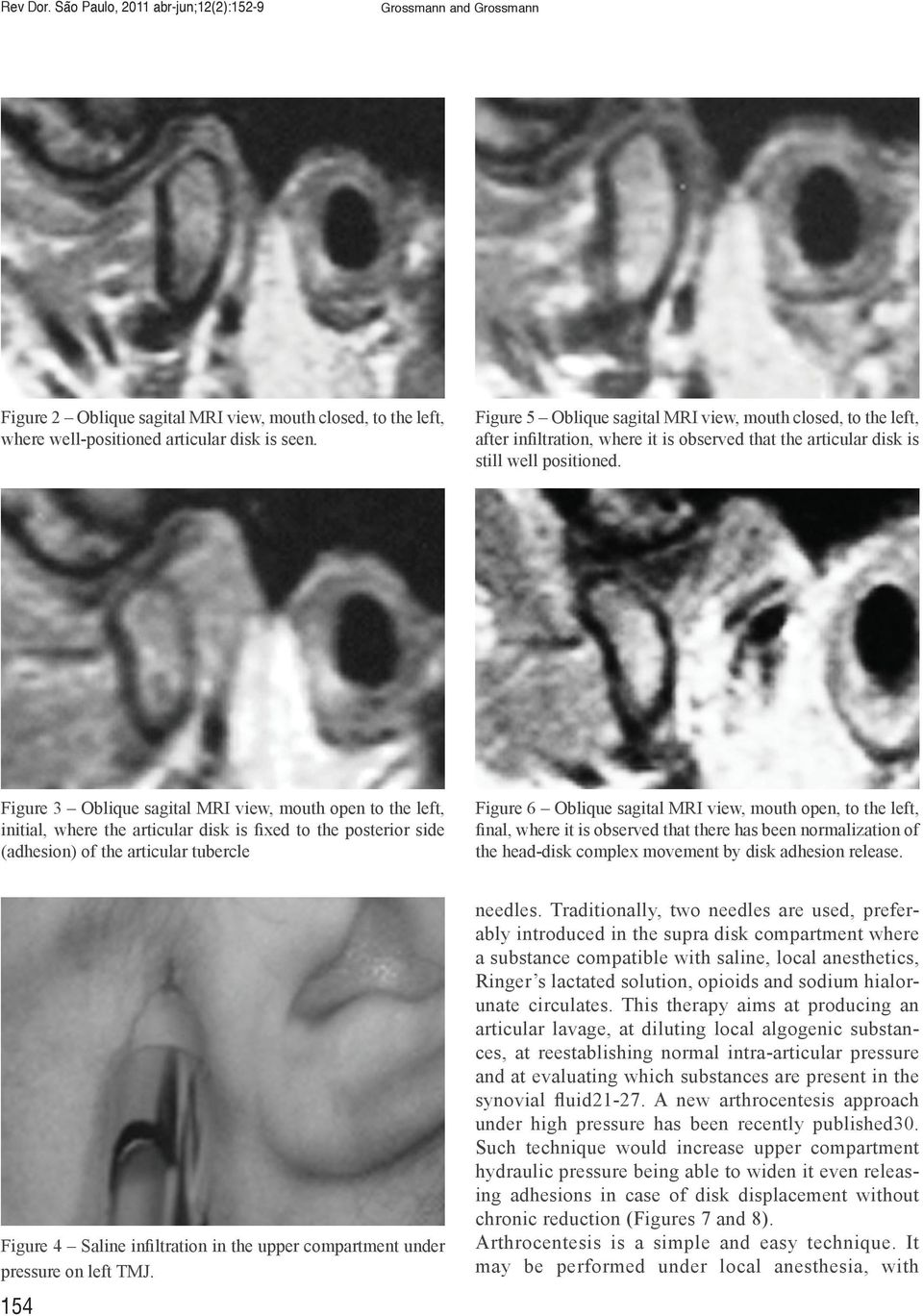 Temporomandibular joint surgery pdf figure 3 oblique sagital mri view mouth open to the left initial where fandeluxe Images