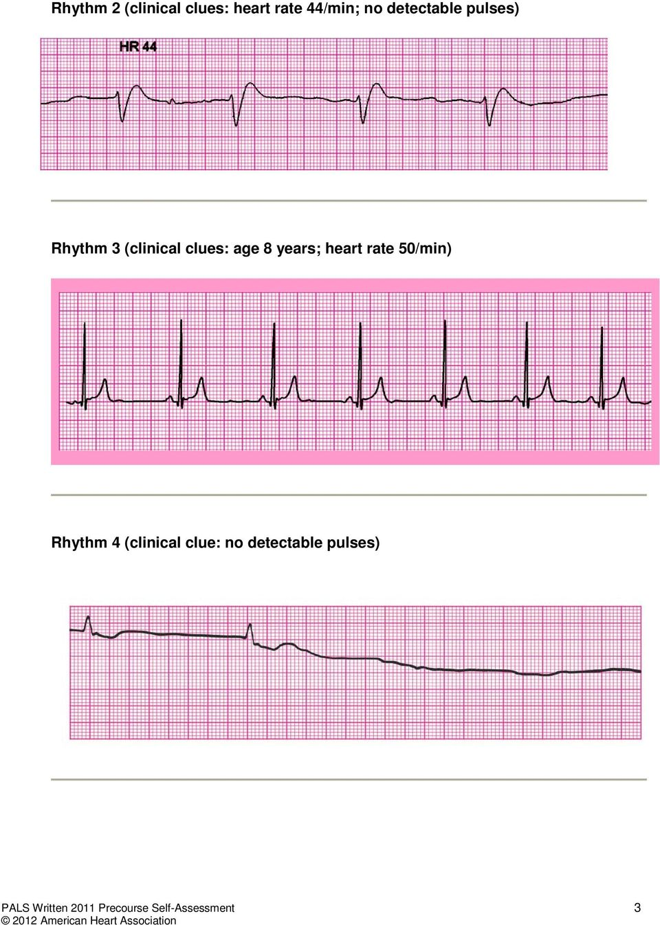 years; heart rate 50/min) Rhythm 4 (clinical clue: no