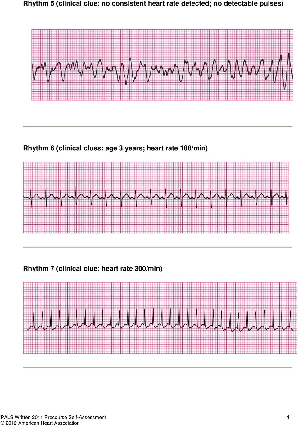 age 3 years; heart rate 188/min) Rhythm 7 (clinical clue: