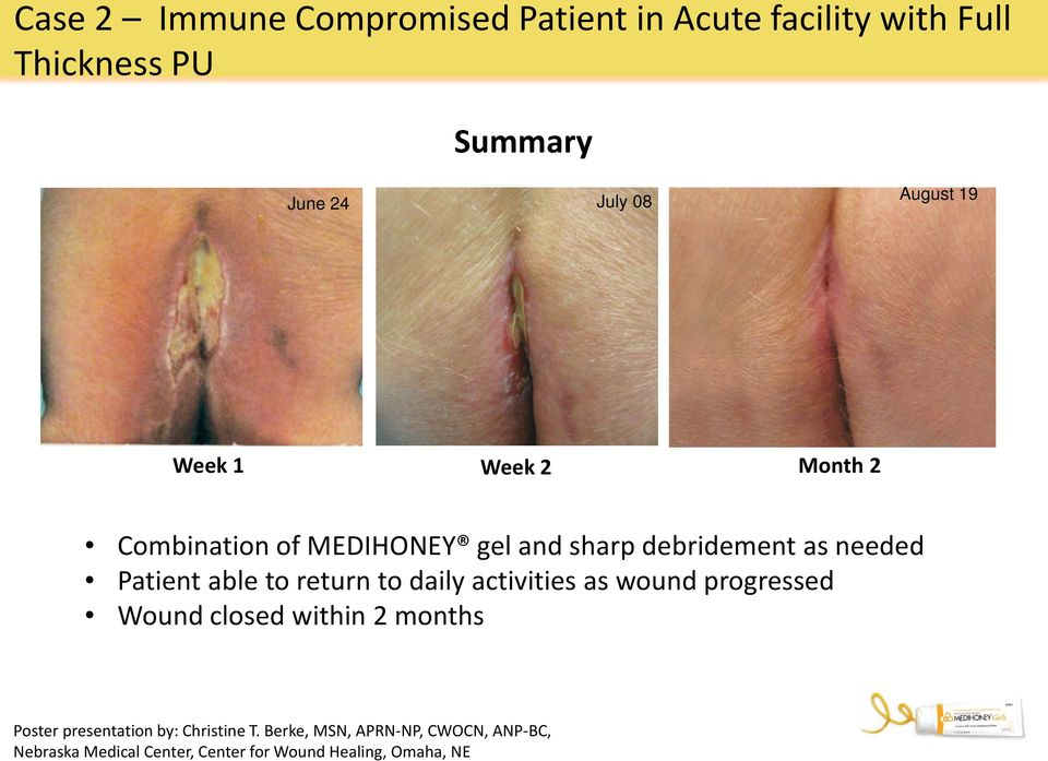 able to return to daily activities as wound progressed Wound closed within 2 months Poster presentation