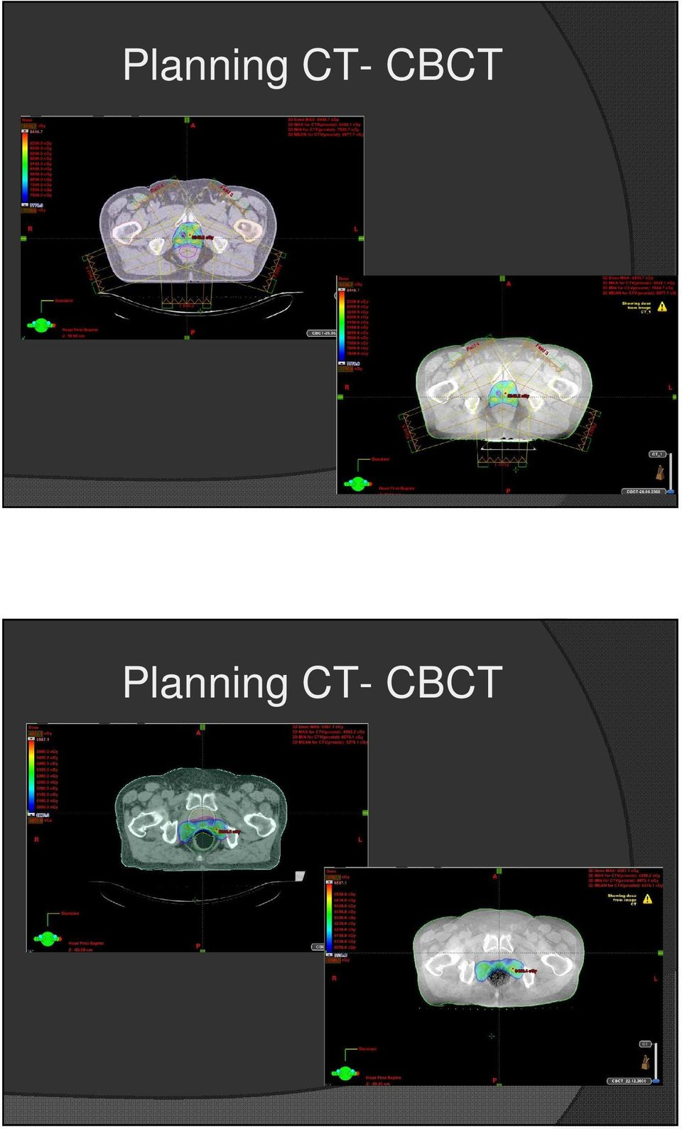 CT- CBCT
