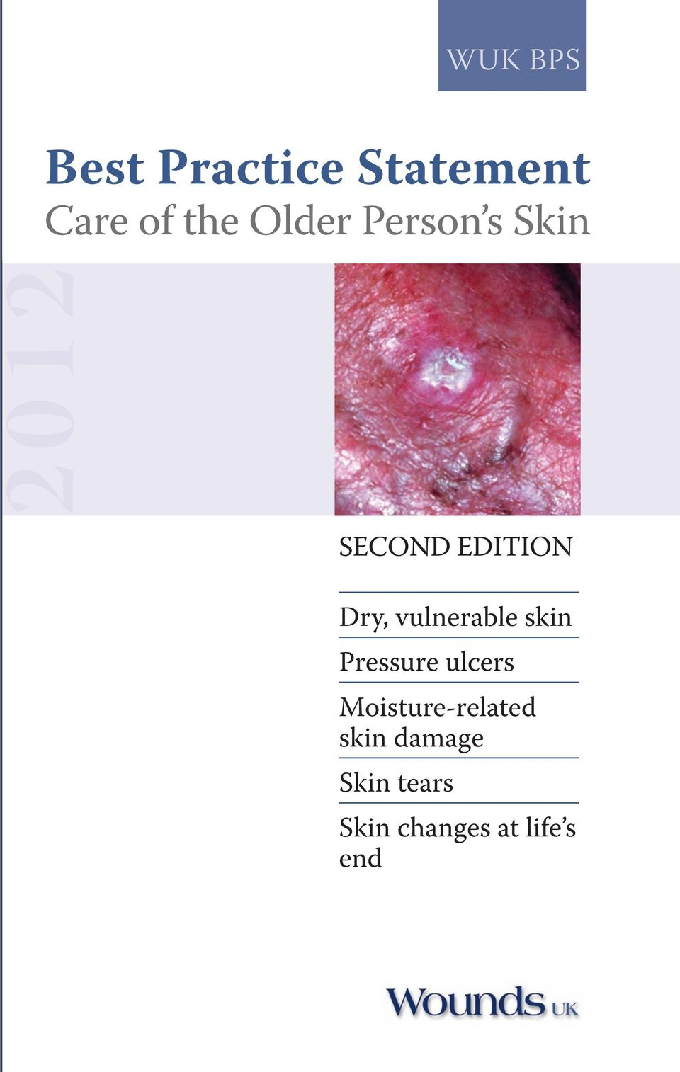 vulnerable skin Pressure ulcers