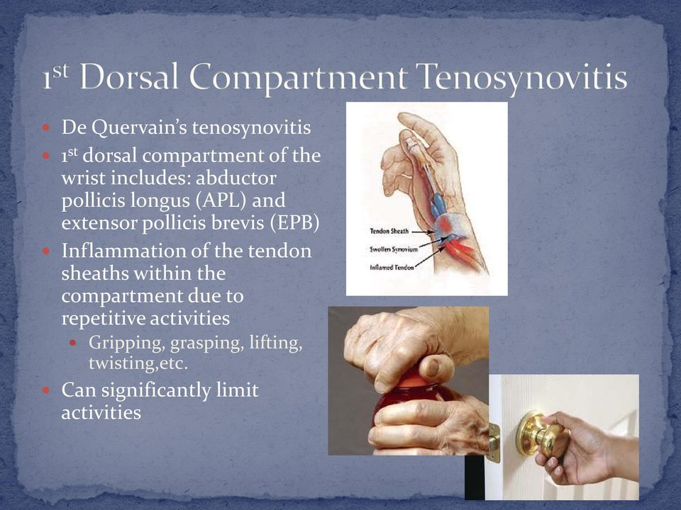 Inflammation of the tendon sheaths within the compartment due to repetitive