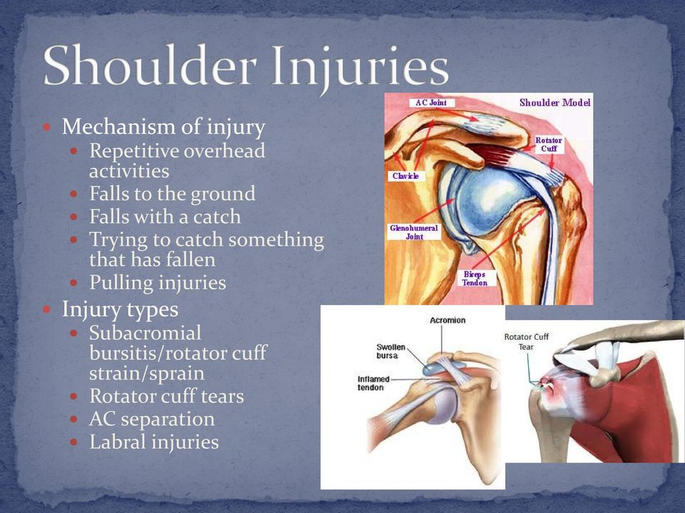 fallen Pulling injuries Injury types Subacromial