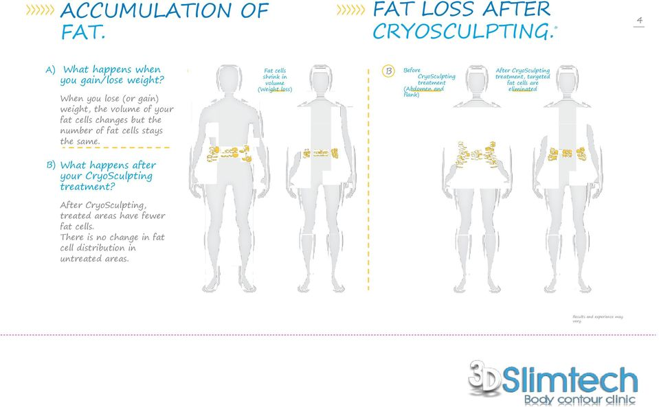 A Fat cells shrink in volume (Weight loss) B Before CryoSculpting treatment (Abdomen and flank) After CryoSculpting treatment, targeted fat