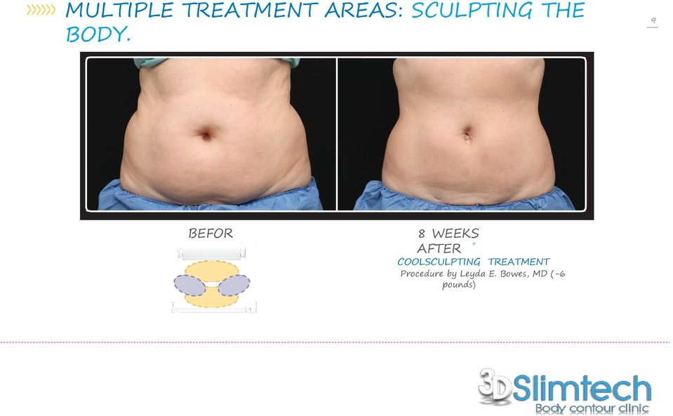 COOLSCULPTING Procedure by