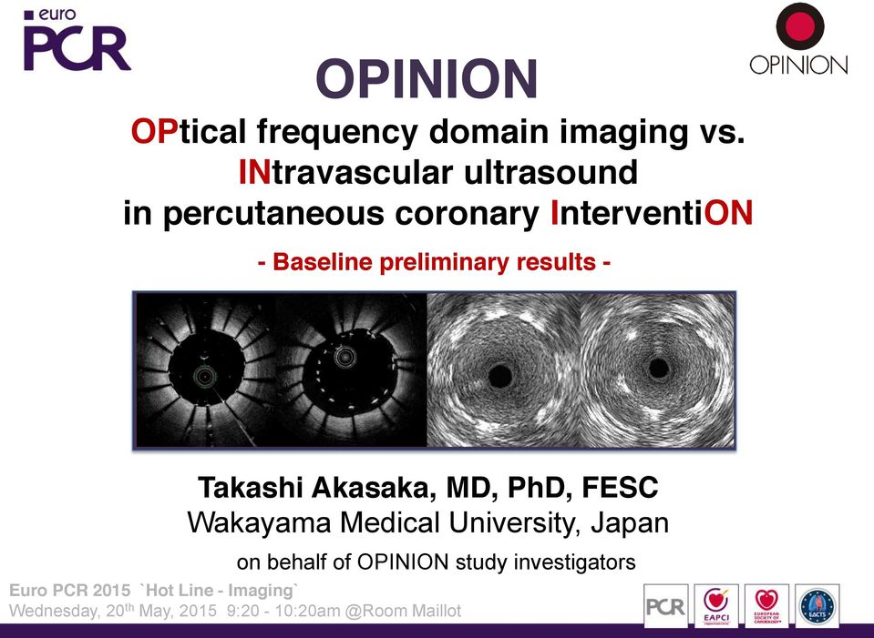 preliminary results - Takashi Akasaka, MD, PhD, FESC Wakayama Medical University,