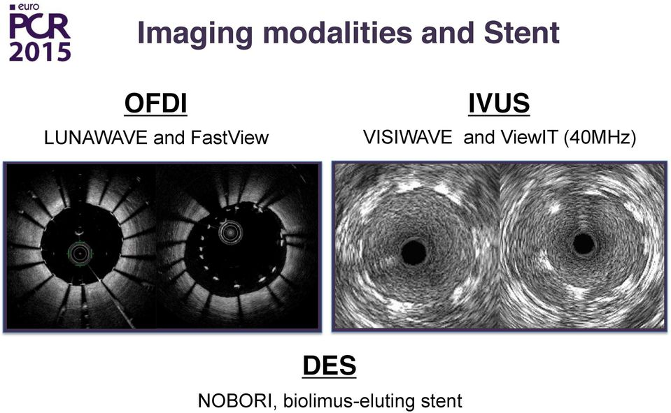 IVUS VISIWAVE and ViewIT